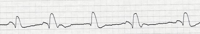 Электромеханическая диссоциация – отсутствие механической активности сердца при наличии электрической